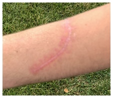 Jame's scar