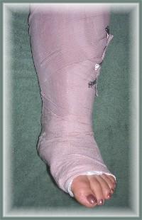 Brooksyne's broken ankle