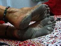 Calloused feet